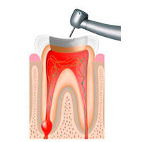https://endodonciadenia.es/wp-content/uploads/2015/11/diente-1-1-205x200.jpg