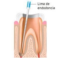 https://endodonciadenia.es/wp-content/uploads/2015/11/diente-2-1-205x200.jpg